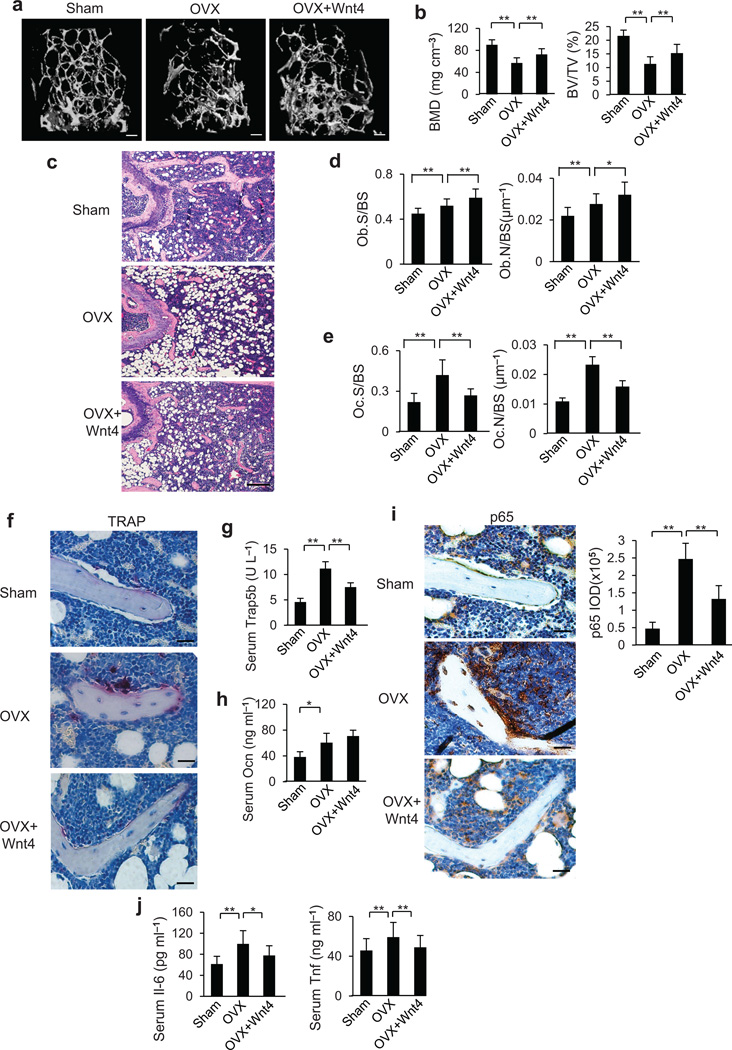 rWnt4 proteins attenuates established bone loss by inhibiting NF-κB. ( a–c ) µCT reconstruction ( a ), BMD and BV/TV ( b ), as well as H E staining ( c ) of distal femoral metaphysis regions from mice after sham operation, OVX and OVX with rWnt4 injection. Scale bars, 200 µm ( a ); 300 µm ( c ). ( d,e ) Morphometric analysis of osteoblast ( d ) and osteoclast ( e ) counts in distal femoral metaphysis from mice after sham operation, OVX and OVX with rWnt4 injection. ( f ) TRAP staining showing osteoclasts surrounding trabecular bones in mice after sham operation, OVX and OVX with rWnt4 injection. Scale bars, 30µm. ( g,h ) ELISA of Trap5b ( g ) and Ocn ( h ) concentrations in serum from mice after sham operation, OVX and OVX with rWnt4 injection. ( i ) Immunostaining with anti-active p65 and quantification of NF-κB activity surrounding the trabecular bones from mice after sham operation, OVX and OVX with rWnt4 injection. Scale bars, 30 µm. ( j ) ELISA of Il-6 and Tnf concentrations in serum from mice after sham operation, OVX and OVX with rWnt4 injection. n = 8 mice for sham group; n = 12 mice per group for mice receiving OVX and OVX with rWnt4 injection. * P