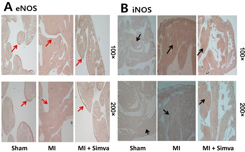 ( A ) Immunohistochemical staining showed that eNOS expression in the MI group was lower than the sham, and eNOS expression in the MI + simvastatin group was higher than the MI group (endothelial line, red arrows); and ( B ) iNOS expression in the MI group was higher than the sham, and iNOS expression in the MI + simvastatin group was lower than the MI group (cytoplasmic brown area, black arrows).