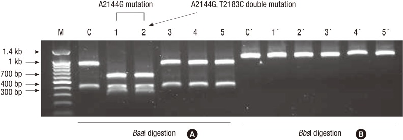 Restriction fragment length polymorphism analysis of 23S rRNA amplicons: ( A ) digestion with Bsa I and ( B ) digestion with Bbs I. The A2144G mutations are observed in lanes 1 to 2, but not in lanes 3 to 5. Note that the A2143G mutation detected by digestion with Bbs I was not detected in any of the strains studied. Lanes 3 to 5 reveal the T2183C mutation, as assessed by DNA sequencing. Lane M, 100 bp DNA size markers (indicated to the left of the gels in base pairs); lane C, H. pylori ATCC 43504; lane 1 to 5, clarithromycin-resistant H. pylori strains.