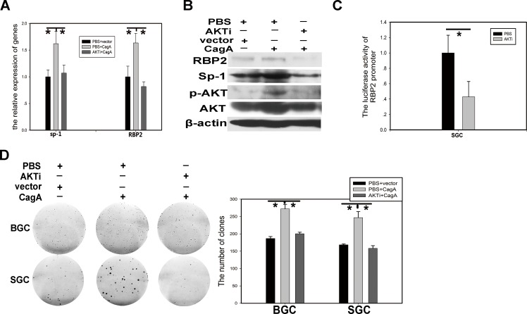 PI3K/AKT participates in RBP2 induction by CagA through Sp1 (A) and (B) RBP2 and Sp1 changes at RNA level and protein level with AKTi and CagA treatment solely or jointly in GC cells respectively. Data are mean±SD of 3 biological replicates, *: P