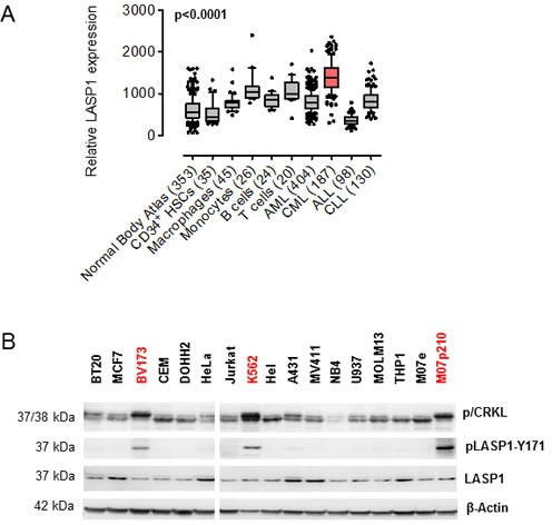 LASP1 is overexpressed in CML and phosphorylated at Tyr-171 in leukemia cell lines (A) Microarray analysis of LASP1 (3927_at) in CML compared to normal tissues, normal bone marrow-derived cells, and myeloid and lymphoblastic leukemias (AML, acute myeloid leukemia; cALL, common acute lymphoblastic leukemia; CLL, chronic lymphocytic leukemia), Mann-Whitney test. (B) Western blot analysis (gradient gel) of phospho/dephospho CRKL (p/CRKL), LASP1 and pLASP1-Y171 in different cancer cell lines (breast cancer: BT-20, MCF-7; cervical cancer: HeLa; epidermoid cancer: A-431; monocytes-macrophages: U-937; acute myeloid leukemia: MOLM-13; acute promyelocytic leukemia: NB4; acute monocytic leukemia MV4-11, THP-1; erythroleukemia: HEL; megakaryoblastic leukemia: M07e; T-cell leukemia: Jurkat; B-cell lymphoma: DOHH-2; acute lymphoblastic leukemia: CCRF-CEM; chronic myeloid leukemia: K562, BV173). Cell lines harboring BCR-ABL are marked red. β-actin served as a loading control.
