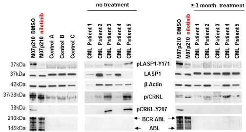 LASP1 is phosphorylated in CML patients Western blot analysis (gradient gel) of LASP1, pLASP1-Y171 and p/CRKL in the leukemia cell line M07p210, in three healthy control donors and in five CML patients before and after TKI treatment. Loading M07p210: 10 μg; loading blood samples: 10 μg for LASP1 and β-actin, 100 μg for pLASP1-Y171, CRKL and BCR-ABL WB. Expression of ABL is not reliably detectable in CML patients. LASP1 is phosphorylated only in CML patients and in the M07p210 cell line but not in controls. In general, CRKL and pLASP1-Y171 phosphorylation decrease under TKI therapy. Patient 4 shows only minimal cytogenetic response to nilotinib treatment (Table 1 ).