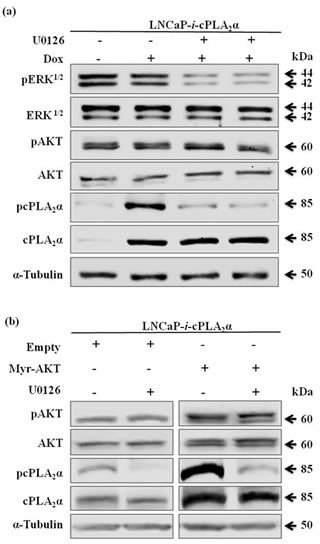 Effect of pAKT on cPLA 2 α is independent of ERK 1/2 (a) LNCaP cells stably transfected with Dox-controlled inducible cPLA 2 α expression system (LNCaP- i -cPLA 2 α) were treated with Dox (100 ng/mL, 24 h), followed by incubation with MEK inhibitor U0126 (5 μM, 1 h). The cells were harvested 24 h later. (b) LNCaP- i- cPLA 2 α cells induced with Dox for 1 h and transfected with Myr-AKT or empty vector (2 μg, 24 h), followed by incubation with U0126 (5 μM, 1 h). The cells were harvested 24 h later. All immunoblotting results are typical of 3 independent experiments.