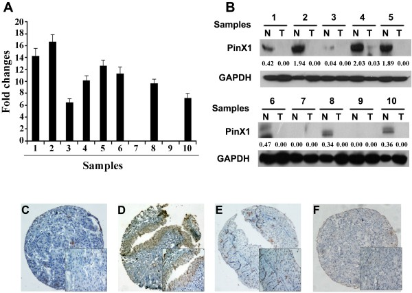The expression of PinX1 in UCB and adjacent normal bladder tissues. (A) Down-regulated expression of PinX1 mRNA was examined by qRT-PCR in 8/10 UCB cases, when compared with adjacent normal bladder tissues. Expression levels were normalized for GAPDH. Error bars, SD calculated from three parallel experiments. (B) Down-regulated expression of PinX1 protein was detected by Western blotting in 7/10 UCB cases, when compared with adjacent normal bladder tissues. Expression levels were normalized with GAPDH. (C-F) The expression of PinX1 in UCB and adjacent normal bladder tissues by IHC (100×). An UCB (case 45) tissue showed negative expression of PinX1 (C) , while its adjacent normal bladder urothelial mucosal tissue was positive stained by PinX1, in which more than 90% of tumor cells were positively stained by PinX1 in the nucleus (D) . Negative expression of PinX1 was observed in another UCB tissue (case 73), in which only 10% of tumor cells demonstrated a nuclear staining of PinX1 (E) . An UCB (case 126) was negatively stained by PinX1 (F) .