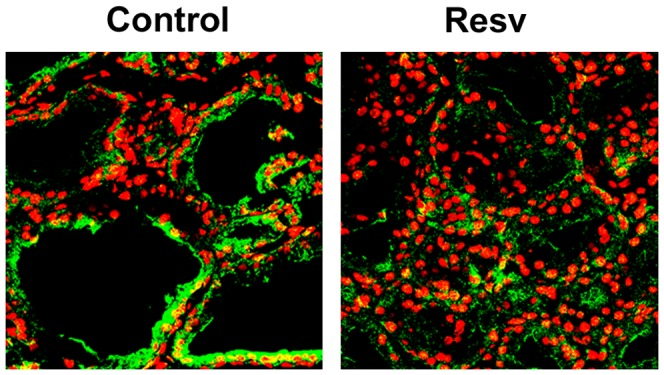 Effects of resveratrol on NIS protein expression in rat thyroid glands. Male Sprague-Dawley rats were treated with the control vehicle (Control, n = 4) or with 50 mg/kg/day resveratrol i.p. (Resv, n = 4), for 14 days. On day 15 th , the animals were sacrificed and their thyroids were removed. Immunofluorescence analysis was performed using a <t>mouse</t> monoclonal <t>anti-NIS</t> antibody and an anti-mouse <t>fluorescein-conjugated</t> <t>secondary</t> antibody, Alexa Fluor 488, (green). Po-Pro-3 iodide was used to stain the nuclei (red). The negative control was performed using a mouse IgG preparations instead of the primary antibody (data not shown). The slides were visualized under a Zeiss LSM S10 confocal microscope with a x40 immersion lens. Representative data from four experiments are showed.