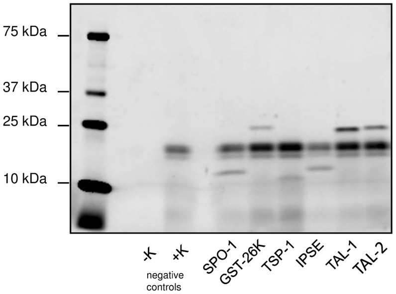 In gel detection of five different S. mansoni antigens expressed in vitro using WGL. SPO-1: Smp_113760; GST-26k: Smp_102070; TSP-1, extracellular loop 2: Smp_095630; IPSE/alpha-1: Smp_112110; SmTAL1: Smp_045200; SmTAL2: Smp_086480. Details of sequences and expected molecular weights are given in the Supplementary Data in Table S3 . Success of translation was monitored by incorporation of BODIPY-labelled fluorescent Lysine in separate aliquots during translation. Samples were run on 4–20% SDS-PAGE gradient gels under reducing conditions and imaged in a Fujifilm LAS-4000. The left lanes show the wheat germ lysate control without template DNA, either without (−K) or with Lysine incorporation (+K), indicating fluorescent components produced during in vitro translation from endogenous mRNA.