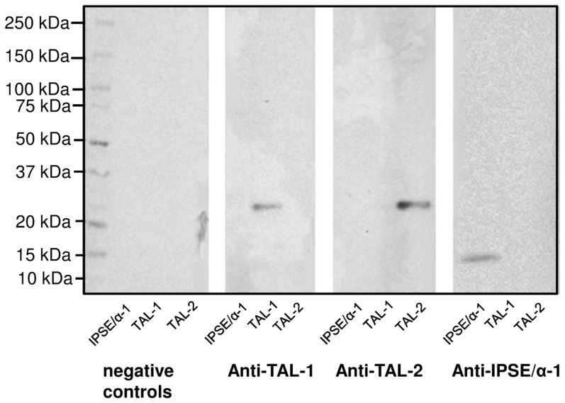 Western blot demonstrating antigenicity of the S. mansoni proteins expressed in the WGL system. Non-purified wheat germ extracts containing in vitro translated IPSE/alpha-1, SmTAL1 or SmTAL2 were separated in a 4–20% SDS-PAGE gel and blotted onto NCM. Separate strips of NCM were treated with anti-TAL1 rabbit serum, anti-TAL2 rabbit serum or anti-IPSE/alpha-1 mouse monoclonal antibody. The negative control (neg. control) was incubated without primary antibody/serum, but with secondary antibody. Membranes were imaged using chemiluminescence and a Fujifilm LAS-4000.