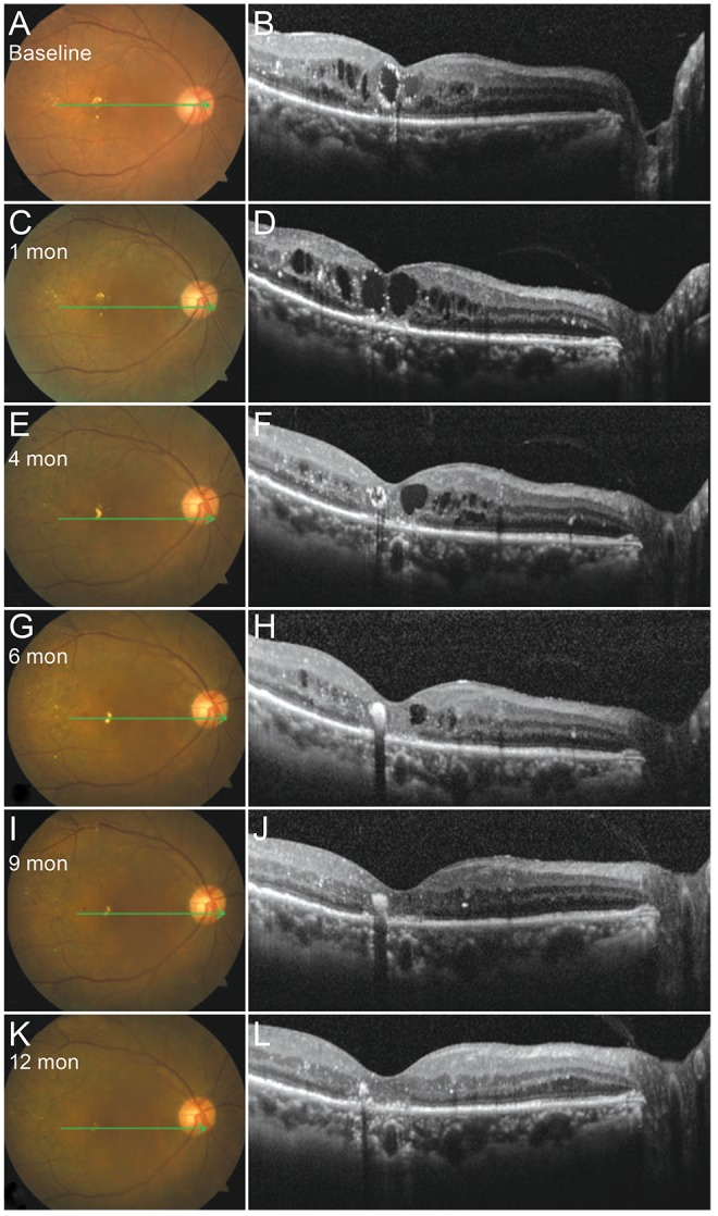 Color fundus photographs and spectral domain optical coherence tomography images of the macula for case 1. The right eye of a 63-year-old woman before (A,B) and after subthreshold <t>micropulse</t> yellow laser photocoagulation (C-L).