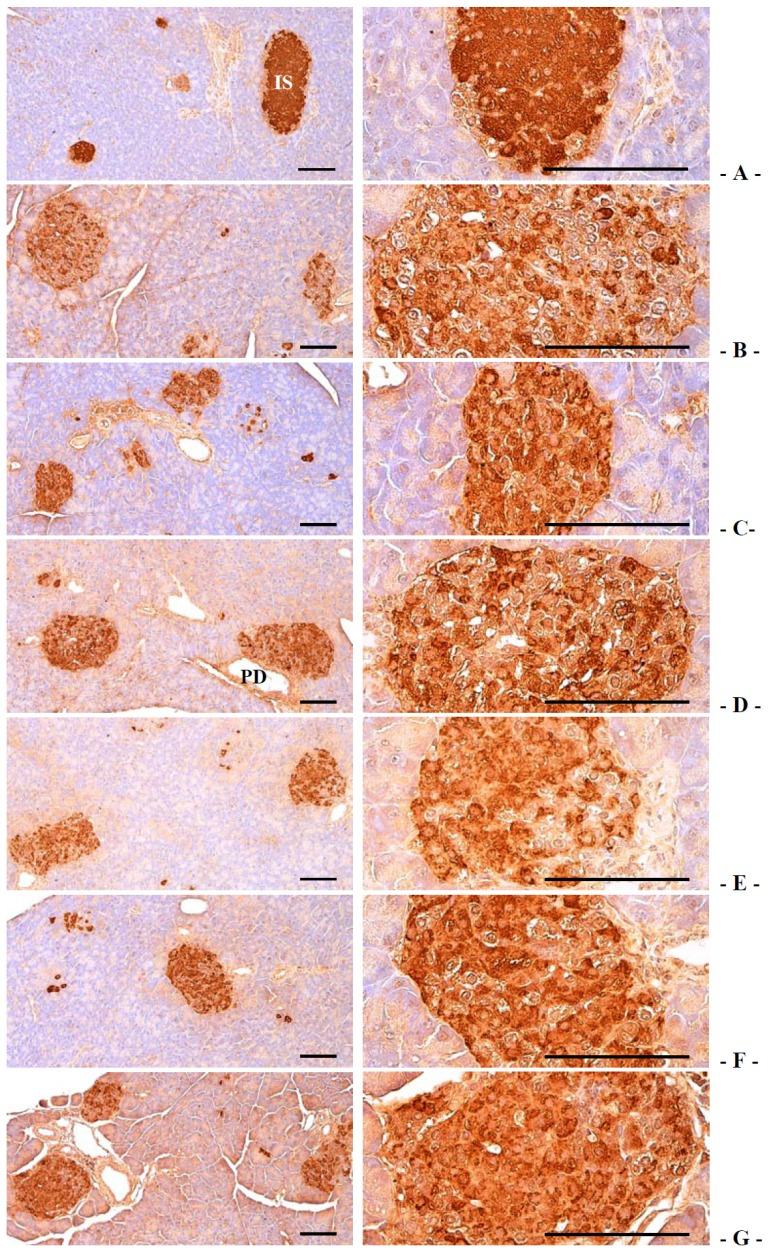 Representative histological images of the insulin-immunoreactive cells in the pancreas, taken from intact normoglycemic or db/db mice. ( A ) Intact control mouse; ( B ) db control mouse; ( C ) metformin 250 mg/kg treated db mouse; ( D ) GT 400 mg/kg treated db mouse; ( E ) fGT 400 mg/kg treated db mouse; ( F ) fGT 200 mg/kg treated db mouse; ( G ) fGT 100 mg/kg treated db mouse. GT, Green tea aqueous lyophilized extracts; fGT, Aquilariae Lignum-fermented green tea aqueous lyophilized extracts; IS, pancreatic islet; PD, pancreatic secretory duct. All immunostained by avidin-biotin-peroxidase complex. Scale bars = 80 µm.