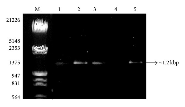 Visualization of PCR amplification products of soil DNA isolated by five different methods using 16S rRNA by different methods. Lane M: λ DNA Eco RI/ Hin d III double digest marker; lane 1: mannitol-PBS-PCI method; lane 2: Soil Master DNA extraction kit; lane 3: mannitol-PBS-CTAB method; lane 4: PEG/NaCl method without liquid nitrogen; lane 5: mannitol-PBS-PEG/NaCl method.