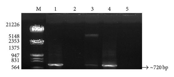 Visualization of <t>PCR</t> amplification products of soil <t>DNA</t> isolated by five different methods using 18S rRNA by different methods. Lane M: λ DNA Eco RI/ Hin d III double digest marker; lane 1: mannitol-PBS-CTAB method; lane 2: PEG/NaCl method without liquid nitrogen; lane 3: mannitol-PBS-PEG/NaCl method; lane 4: mannitol-PBS-PCI method; lane 5: Soil Master DNA extraction kit.