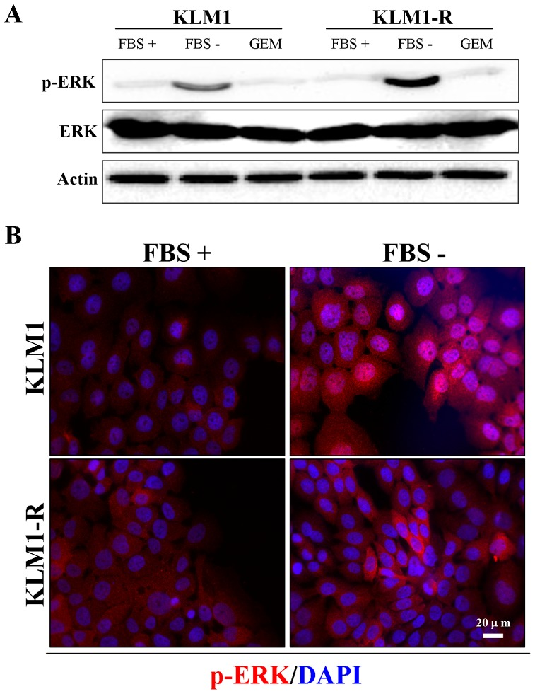Serum starvation induces activation and different localization of extracellular ERK between KLM1 and KLM1-R cells. (A) KLM1 and KLM1-R cells were cultured in medium with or without FBS or exposed to 10 μg/mL of GEM for 24 h. Cell lysates were resolved by SDS-PAGE and probed with specific antibodies against p-ERK and ERK. (B) and (C) The indicated cells were stained with specific antibodies against p-ERK, Hsp27 and LC3A/B after cells were cultured in medium with or without FBS for 24 h. DAPI: blue and p-ERK: red in (B) and LC3A/B: green and Hsp27: red in (C). Scale bar, 20 μm.