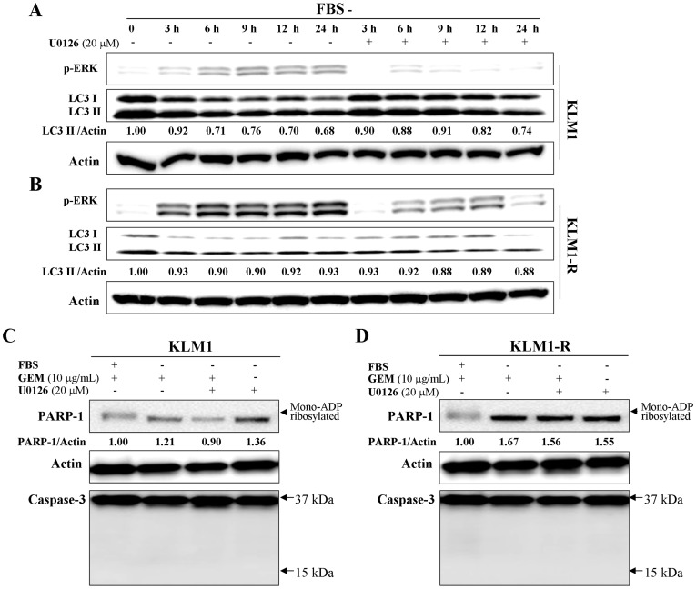 Serum starvation suppresses GEM-induced PARP-1 degradation through inhibition of autophagy via the ERK signaling pathway. (A) KLM1 and KLM1-R cells were exposed to 10 μg/mL of GEM in the presence or absence of 20 μM of U0126 for the indicated time courses. Cell lysates were resolved by SDS-PAGE and probed with specific antibodies against p-ERK and LC3A/B. (B) and (C) KLM1 and KLM1-R cells were cultured in the medium with or without FBS and meanwhile exposed to either or both GEM and U0126 at the indicated concentration. Cell lysates were resolved by SDS-PAGE and probed with specific antibodies. The arrow head indicates the mono-ADP ribosylated form of PARP-1. Arrows indicate the position area of cleaved caspase-3. The expression of PARP-1 was confirmed repeatedly by a distinct PARP-1 antibody described in Materials.