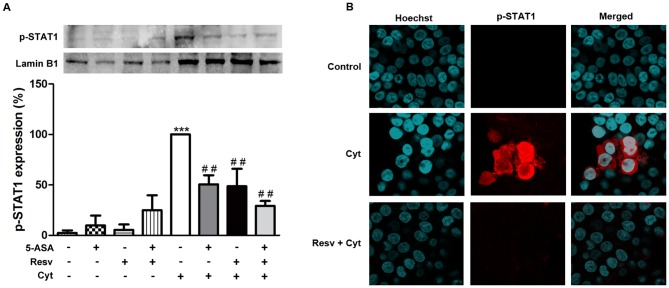"""Resveratrol decreases activated-STAT1 levels in the nucleus of cytokine-stimulated HT-29 cells more efficiently than 5-ASA. Cells were pre-incubated with 25 µM Resv or 500 µM 5-ASA or both (25 µM Resv plus 500 µM 5-ASA) and then exposed to a combination of cytokines for 30 minutes. The levels of Tyr701 phospho-STAT1 were analyzed in nuclear extracts by Western blotting (A), as described in """" Materials and Methods """" and expressed as percentage of cytokine-stimulated cells. Values are mean ± SEM of at least three independent experiments, each one in duplicate. *** P"""