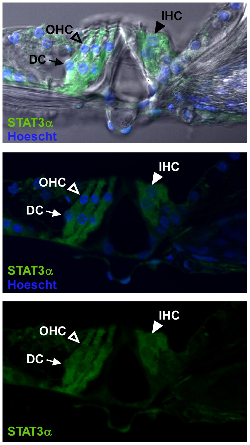 <t>STAT3α</t> is expressed in the sensory epithelium in the organ of Corti. Immunohistochemical staining of vibratome-cut whole mount cochlea sections for STAT3α (green) showed fluorescent signal in the cytoplasm of inner hair cells (IHC), outer hair cells (OHC) and Deiters cells (DC). Open arrow heads point to OHCs, closed arrow heads point to IHCs, and the arrows point to DCs. Nuclei are stained with Hoescht 33258 (blue). The images are from the upper basal turn of the cochlea and are representative of 3 individual mice.