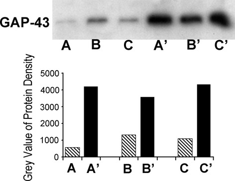 Western blot analyses of growth-associated protein 43 (GAP-43) protein in three patients. Each patient had subdural grids characterized epileptic area and nonepileptic area: nonepileptic areas (lanes A, B, and C) and epileptic areas (lanes A′, B′, and C′). A and A′ are from one patient, B and B′ are from a second patient, and C and C′ are from another patient. Note the greater GAP-43 protein in the epileptic areas as compared to nonepiletic areas, respectively, in all three patients. Quantitative optical densitometry of GAP-43 blot bands by using Image Pro Plus v6.1 Analyzer. The gray values of each band are shown in histograms which represent the relative densities of GAP-43 protein at each band from the three patients. Hatched bars, the quantified protein densities in nonepileptic cortical regions; solid bars, the quantified protein densities in epileptic areas.