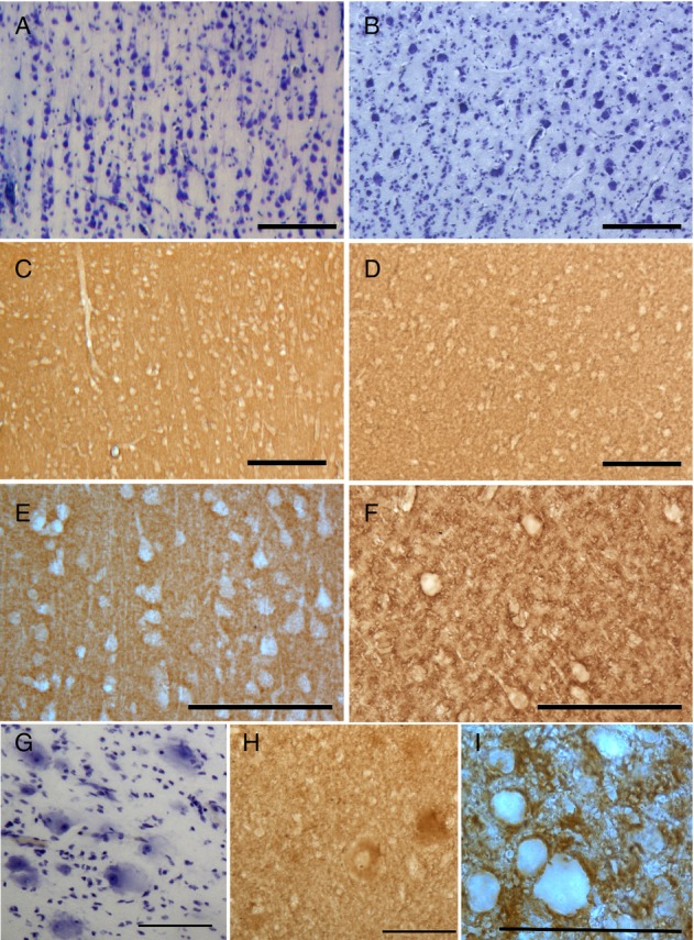 Characterization of growth-associated protein 43 (GAP-43) immunohistochemistry (IHC) in normal and dysplastic cortex. Photomicrograph cresyl echt violet (CV) and GAP-43 (IHC) staining from normal-appearing cortex (A, C, and E) and dysplastic cortex (B, D, and F–I). In the normal-appearing cortex (A, C, and E): CV-stained section (A) shows well-laminated cortical pyramidal cells with their dendrites appropriately positioned toward the pial surface. The adjacent section with GAP-43 IHC (C) shows only background staining. At higher magnification (E), no specific GAP-43 immunostaining can be seen in cell bodies or intercellular space. By contrast, in the dysplastic cortex (B, D, and F–I): CV-stained section (B) show that the vertical and horizontal laminations are disrupted and dysmorphic cells are darkly stained. In this area, GAP-43 (D) shows increased immunoreactivity. At higher magnification (F), it reveals that GAP-43 stained cell surface as rim appearance and also stained punctate clumps or tubular structures. Those GAP-43 stained patterns in dysplastic cortex are illustrated at higher magnification (I). The balloon cells are strikingly large opalescent cytoplasm with eccentric nuclei (G). Some of these balloon cells are faintly stained with GAP-43 in the cytoplasm (H). Scale bars: 200 μ m in (A, B, C, and D); 100 μ m in (E–H); 50 μ m in (I).