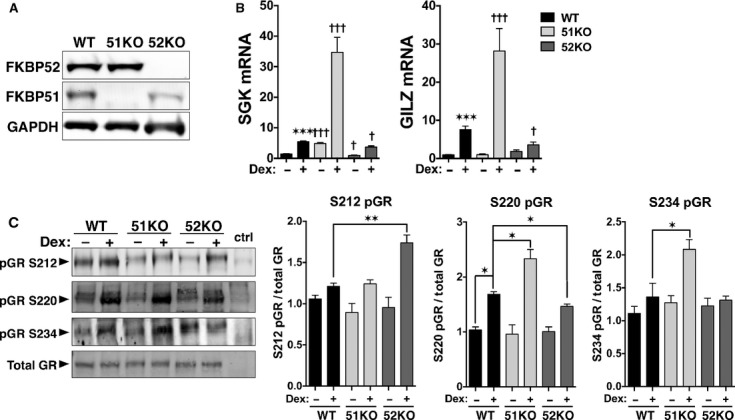 FKBP51 and FKBP52 reciprocally control GR activity and phosphorylation. (A) Western blot analysis of whole cell extracts from WT, FKBP51-KO, and FKBP52-KO MEF cells demonstrating a complete lack of FKBP51 and FKBP52 in the KO cells. GAPDH was used as loading control. (B) qRT-PCR analysis of SGK and GILZ expression in WT, FKBP51-KO, and FKBP52-KO MEF cells following treatment with 100 μ mol/L Dex for 2 h. Transcript expression was normalized to 18S mRNA. Data represent the mean ± SEM of three independent experiments, assayed in duplicate. *versus WT control, † KO versus WT. (C) Whole cell extracts of WT, FKBP51-KO and FKBP52-KO MEF cells treated with or without Dex for 1 h were analyzed by Western blotting with antibodies specific to phospho-serines 212, 220, and 234 of mouse GR. FiGR antibody was used to detect total GR. Extracts from COS-7 cells lacking GR were used as negative controls (neg ctrl). Quantitation of GR bands was performed by infrared spectrophotometry. Phospho-GR (pGR) signals were normalized to total GR at each condition. Data represent the mean ± SEM of three independent experiments. Significant differences in transcript expression or protein levels are indicated as follows: * P