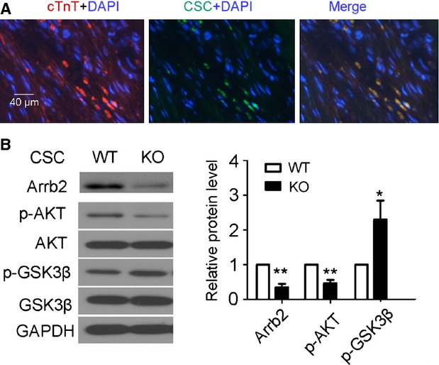 <t>Arrb2/miR-155/GSK3β</t> pathway is important in CSC-mediated cardiac repair. Isolated 2 × 10 5 Sca-1+ cells from WT or Arrb2-KO mice were injected immediately into infarcted and border zones of the mouse heart after myocardial infarction (MI). Hearts were then reperfused for 1 hr. After 2 weeks, 2-mm sections of hearts near the mid-ventricles were collected. ( A ) Fluoresence microscopy of hearts for WT mice with MI injected with WT Sca-1+ cells and stained with cTnT. Red shows cardiomyocytes; green shows injected Sca-1+ cells; blue shows DAPI-stained cell nuclei; scale bar, 40 μm; n = 6. ( B ) Western blot analysis of the expression of Arrb2, total Akt and p-Akt, and total and p-GSK3β. GADPH was a loading control. The column shows the quantification of the protein expression. Protein levels were normalized to GAPDH or total protein; n = 3; * P