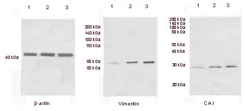 Expression of vimentin and carbonic anhydrase I in normal pituitary tissue. Western blot assay results showing high expression of vimentin and carbonic anhydrase I (CAI) in two normal pituitary samples (lanes 2 and 3) and low expression in normal brain tissue (lane 1). Beta-actin was used as an internal standard. Our findings were consistent with those from two-dimensional high-performance liquid chromatography combined with LTQ-Orbitrap mass spectrometry. Molecular weights are shown at the left.
