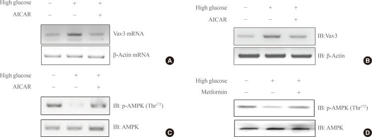 (A) Total RNA was cultured under high glucose culture conditions in the presence or absence of 5-aminoimidazole-4-carboxy-amide-1-d-ribofuranoside (AICAR) treatment, and reverse transcription-polymerase chain reaction (RT-PCR) was conducted using specific Vav3 primers. PCR products were then run on 1% agarose gels and visualized under ultraviolet light. β-Actin mRNA was employed as a positive control. (B) C2C12 cells were cultured under high glucose conditions in the presence or absence of AMP-activated protein kinase (AMPK) agonist 5-aminoimidazole-4-carboxy-amide-1-d-ribofuranoside (AICAR). The cell lysates (25 µg) were analyzed via Western blotting for anti-Vav3 antibody. Blotting with anti-β-actin antibody was conducted as a protein loading control. (C) C2C12 cells were cultured under high glucose conditions in the presence or absence of AICAR. The cell lysates (25 µg) were analyzed via Western blotting for anti-phospho-AMPK antibody. Blotting with anti-AMPK antibody was conducted as a protein loading control. (D) C2C12 cells were cultured under high glucose conditions in the presence or absence of metformin. The cell lysates (25 µg) were analyzed via Western blotting for anti-phospho-AMPKantibody. Blotting with anti-AMPK antibody was conducted as a protein loading control. The results shown are from three independent experiments.