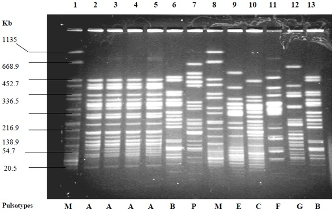 PFGE banding patterns of Xba I-digested chromosomal DNA of representative ESBL-producing E. coli isolates. Lane 1, Salmonella enterica serovar Braenderup (H9812) (marker); Lanes 2-5, PFGE type A; Lane 6, PFGE type B; Lane 7, PFGE type P; Lane 8, Salmonella enterica serovar Braenderup (H9812) (marker); Lane 9, PFGE type E; Lane 10, PFGE type C; Lane 11, PFGE type F; Lane 12, PFGE type G; Lane 13, PFGE type B. Four isolates belonged to PFGE pattern A were isolated from UTI patients attending SMCH hospital.