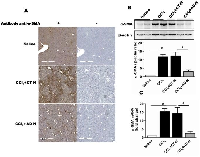 Effect of ADP355 on CCl 4 -induced liver fibrosis in mice. A ) Representative immunohistochemical (α-SMA) stained liver sections obtained for various treatments outlined (left panel); antibody control were presented in right panel. The original magnification was 4X. B ) Representative Western blot analysis and densitometry for α-SMA liver lysates obtained from saline, CCl 4 , CCl 4 –CTN and CCl 4 –ADN treated mice. C ) Hepatic α-SMA mRNA expression was assessed by qRT-PCR compared to housekeeping gene 18 s. *p