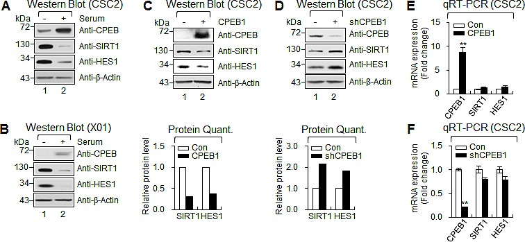 CPEB1 regulates translation of HES1 and SIRT1 mRNAs (A and B) WB of CPEB1, SIRT1 and HES1 in CSC2 (A) and X01 (B) with serum or without serum. (C and D) WB of CPEB1, SIRT1 and HES1 in CSC2 infected with CPEB1-expressing lentiviral or control construct (C) and infected with shCPEB1-expressing lentiviral or control construct (D). Expression level of SIRT1 and HES1 proteins were quantified with ImageJ software. Each protein level was normalized with that of β-Actin (loading control). (E and F) qRT-PCR of SIRT1 and HES1 in CSC2 infected with CPEB1-expressing lentiviral or control construct (E) and infected with shCPEB1-expressing lentiviral or control construct (F).