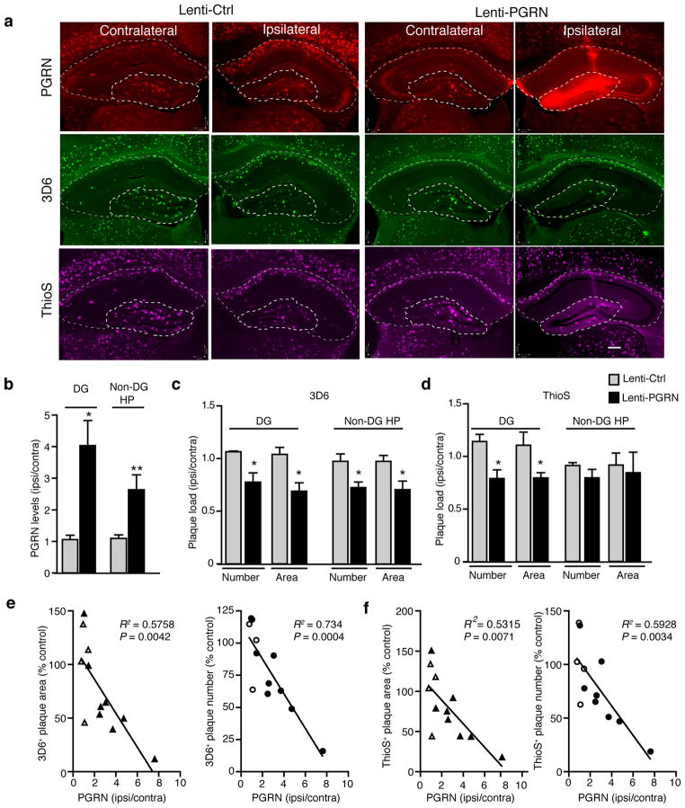 PGRN overexpression in hippocampus decreases amyloid plaque load in 5xFAD mice. ( a ) Representative images of the contralateral and ipsilateral hemispheres of Lenti-Ctrl- and Lenti-PGRN-injected 5xFAD mice. Dashed lines indicate boundaries used for quantification of dentate gyrus (DG) and non-dentate gyrus hippocampal (non-DG HP) areas. PGRN (red), 3D6 + plaques (green), and ThioS + plaques (magenta). Scale bar, 200 μm. ( b ) Quantification of PGRN immunostaining normalized to the uninjected contralateral hemisphere for Lenti-Ctrl- or Lenti-PGRN-injected mice. Two Lenti-PGRN-injected mice lacking sufficient overexpression (i.e.