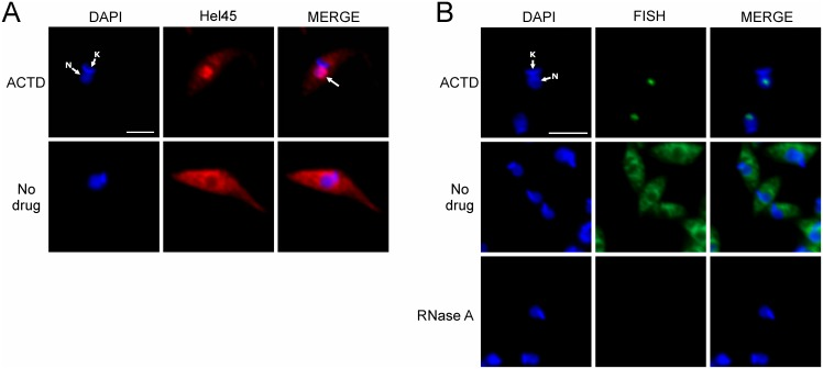 Localization of Hel45 after actinomycin D treatment in T. cruzi . Detection of exogenous Hel45 (A) tagged with PTP at the NT by indirect immunofluorescence with an anti-ProtA antibody and of mRNA (B) by fluorescence in situ hybridization (FISH) with a digoxigenin-conjugated oligo(dT) probe in T. cruzi after treatment with 50 µg/ml actinomycin D (ACTD) for 24 hours. Probe detection was carried out by indirect immunofluorescence with anti-DIG mouse monoclonal antibodies (Sigma-Aldrich, 1∶300 dilution) followed by secondary Alexa Fluor 488-conjugated antibodies (1∶600 dilution). As a control, 100 µg/ml RNase A was incubated with the parasites before probe hybridization (RNase A). DAPI = DNA stained with DAPI. Hel45 = localization of tagged Hel45. MERGE = merged images for DAPI staining and Hel45 or mRNA localization. N = nucleus. K = kinetoplast. Arrows = parasites with nuclear accumulation of tagged Hel45. Bar = 5 µm.