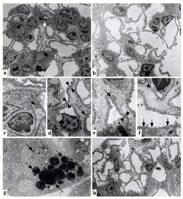 Electron microscopic analysis of affected glomeruli (a, c-f, h), and tubules (g) on day 4 (a, c-g) and week 5 (h) after injection of pCAG/DT-A/FuGENE™6 complex. In the affected glomeruli (a), severe matrix expansion with numerous electron-dense deposits was detected in the mesangial matrix. The capillary lumen of endothelial cells was deformed, probably due to proliferation of active mesangial cells. Degeneration of mesangial cells was sometimes observed [indicated by an arrow in (a)]. In contrast, the control glomeruli derived from mock injection of PBS(-) on day 4 (b) exhibited normal appearance. Notably, formation of focal deposits in glomerular basement membrane was often remarkable [indicated by arrows in (c-f)]. The initial, small deposits of glomerular basement membrane are shown by arrowheads in (d) and (e). Incorporation of lipids, probably DNA/lipid complexes that had been re-uptaken by renal tubules, was noted in the cytoplasm of renal tubules [indicated by arrows in (g)]. On week 5, nearly normal glomerular structure was observed (h).