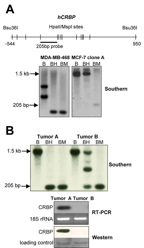 In some human breast cancers, hCRBP hypermethylation is widespread. A. Sketch outlining the Southern blot strategy used to evaluate hCRBP methylation in human breast cancer specimens. The strategy was tested in MDA-MB-468 and ZR75-1 cells whose hCRBP methylation status was known beforehand. B, BH and BM stand for, respectively, Bsu36I digestion alone, Bsu36I digestion followed by Hpall digestion, and Bsu36I digestion followed by MspI digestion (MspI is the methylation-insensitive isoschizomer of Hpall). In agreement with the bisulfite sequencing data, Southern blotting revealed hCRBP undermethylation in MDA-MB-468 and hypermethylation in MCF-7 clone A cells (note loss of the large Bsu36I fragment after BH digestion of MDA-MB-468 genomic DNA and retention of this fragment in the case of MCF-7 clone A). A hCRBP restriction fragment length polymorphism (an extra Bsu36I site within the 205 bp fragment) accounts for the displaced band migration pattern in MDA-MB-468 cells. B. Southern, RT-PCR and Western blotting results for 2 human breast cancer specimens. The yield of the 205 bp product was decreased by > 50% after BH digestion relative to BM digestion. We infer from this that > 50% of the cells in the tumor displayed hCRBP hypermethylation. The protein blot was post-stained with Ponceau S and a major band used as loading control.