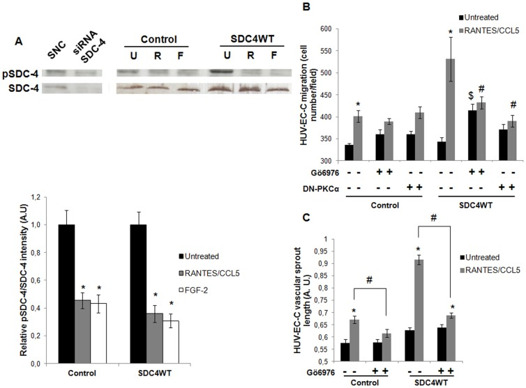 PKCα mediates RANTES/CCL5-induced endothelial cell migration and vascular tube formation via syndecan-4. (A) Specificity of SDC-4 and pSDC-4 antibodies was checked using siRNA-negative control (SNC) or siRNA-SDC-4 (siRNA SDC-4) transfected cells by western blot analysis. HUV-EC-C transfected with GFP plasmid (control) or with SDC4WT-GFP (SDC4WT) were stimulated or not (U) by 3 nM RANTES/CCL5 (R) or 20 ng/ml <t>FGF-2</t> (F) and SDC-4 phosphorylation at Ser179 was evaluated by western blot. Upper panel, representative Western blot analysis. Lower panel, densitometry quantification of three independent experiments. pSDC-4 band intensity was normalized to SDC-4 one. Results of relative densitometry intensities (mean ± SEM) are expressed in arbitrary units (A.U.). * P