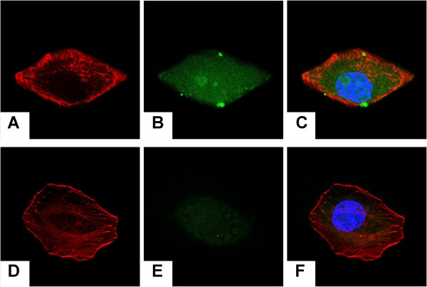 Intracellular drug delivery of the hybrid PLA NPs/MMC-SPC.  Confocal laser scanning microscopy images of H 22  cells incubated with the  (A,B,C)  coumarin-6-PLA NPs/FITC-MMC-SPC and  (D,E,F)  coumarin-6-PLA NPs/FITC-MMC at the equivalent coumarin-6 concentration for 12 h at 37°C.  (A,D)  Left column showed the red fluorescence from the cytoskeleton (the cell nuclei were stained with rhodamine-phalloidin).  (B,E)  Middle column showed the green fluorescence from the drugs (the drugs were labeled with FITC). The merged image of the images in left column and middle column is shown in  (E,F)  right column. The nuclei were stained with Hoechst 33258 (Sigma-Aldrich, St. Louis, MO, USA) (blue).