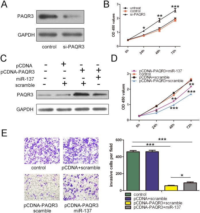 The expression of PAQR3 partially rescued <t>miR-137-enhanced</t> cell proliferation and invasion. (A) Western blot analysis showed that transfection of small interfering <t>RNA</t> against PAQR3 into T24 cells led to dramatically decreased PAQR3 protein expression. GAPDH was also detected as a loading control. (B) Silencing of PAQR3 significantly enhanced the proliferation of bladder cancer cells. The growth index as assessed at 0, 24, 48 and 72 h. (C) Western blot analysis of PAQR3 in T24 cells co-transfected with either miR-137 mimic or scramble and 2.0 µg pCDNA- PAQR3 or pCDNA empty vector. GAPDH was also detected as a loading control. (D) Cell growth curves in T24 cells transfected with different combinations at 0, 24, 48 and 72 h. (E) Transwell analysis of T24 cells treated with different combinations. The relative ratio of invasive cells per field is shown right. *p
