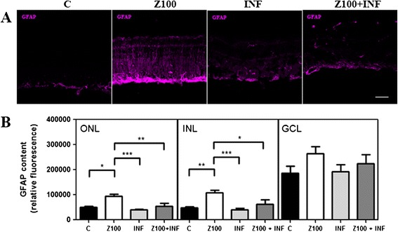 Infliximab prevents <t>Zaprinast-induced</t> glial fibrillary acidic protein (GFAP) overexpression in cultured porcine retina. Retinal explants were incubated with dimethyl sulfoxide <t>(DMSO),</t> Zaprinast and Infliximab alone or combined with Zaprinast as described in Methods. (A) Confocal laser scanning micrographs of retinal sections showing GFAP content. Scale bar: 50 μm. (B) Bar graphs showing the quantification of GFAP content. Values are the mean ±SEM of six different cultures. Values that are significantly different are indicated by asterisks * P