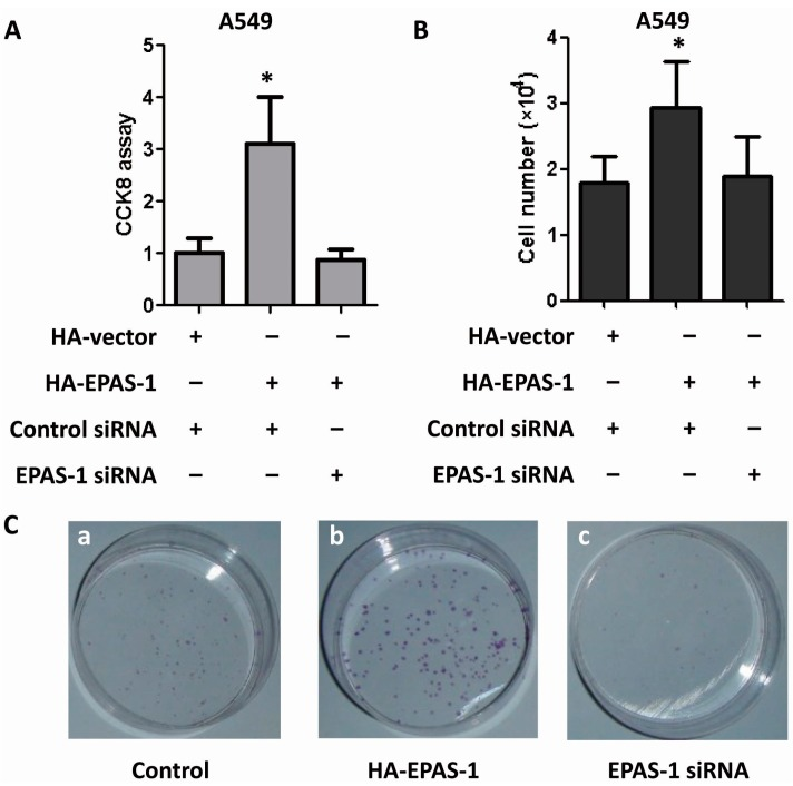 EPAS-1 potentiates human lung adenocarcinoma cell survival and proliferation. ( A ) EPAS-1 over-expression increased A549 cell viability while its knockdown restricted this effect. Data points were determined in triplicate and shown with the mean ± SD (* p