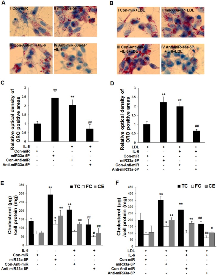 Effects of overexpression of miR-33a-5P and Anti-miR-33a-5P on intracellular lipid accumulation in THP-1 macrophages in the absence or presence of LDL. THP-1 macrophages were infected using Con-miR, miR-33a-5P, Con-Anti-miR, and Anti-miR-33a-5P, respectively, after 24 h PMA stimulation. After 48 h infection, THP-1 macrophages we incubated in serum-free medium at 37°C for 24 h. Then, the medium was respectively replaced by fresh serum-free medium (0.2% BSA) containing blank control ( A , I, Con-miR), blank control ( A , II, miR-33a-5P), 40 ng/ml IL-6 ( A , III, Con- Anti-miR plus IL-6), 40 ng/ml IL-6 ( A , IV, anti-miR-33a-5P plus IL-6), 25 µg/ml LDL ( B , I, Con-miR plus LDL), 25 µg/ml LDL ( B , II, miR-33a-5P plus LDL), 25 µg/ml LDL plus 40 ng/ml IL-6 ( B , III, Con-Anti-miR plus IL-6 plus LDL), or 25 µg/ml LDL plus 40 ng/ml IL-6 ( B , IV, Anti-miR-33a-5P plus IL-6 plus LDL), followed by incubation at 37°C for 24 h. ( A and B ) The cells were examined for lipid inclusions by oil red O staining. The results are representative of those observed in six separate experiments (×400). ( C and D ) Semi-quantitative analysis of oil red O positive staining. Data are means ± SD from 6 separate fields. ( E and F ) Quantification of levels of intracellular cholesterol contents. Data are means ± SD of duplicate wells from 6 experiments. *, P