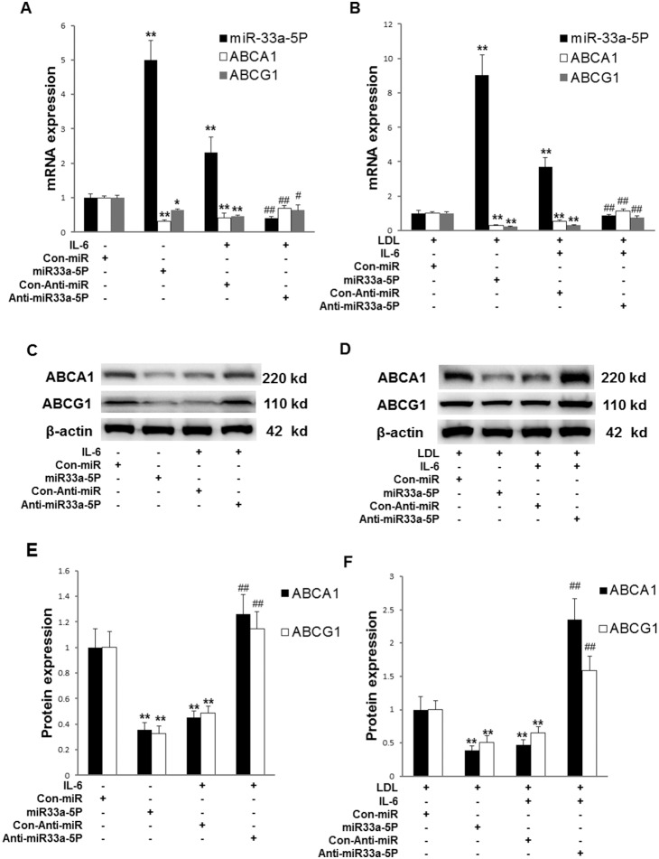 Effects of overexpression of miR-33a-5P and Anti-miR-33a-5P on the expression of miR-33a-5P, ABCA1 and ABCG1 in THP-1 macrophages in the absence or presence of LDL. THP-1 macrophages were infected using Con-miR, miR-33a-5P, Con-Anti-miR, and Anti-miR-33a-5P, respectively, after 24 h PMA stimulation. After 48 h infection, THP-1 macrophages were incubated in serum-free medium at 37°C for 24 h. The medium was then respectively replaced by fresh serum-free medium (0.2% BSA) containing ( A ) blank control, blank control, 40 ng/ml IL-6, or 40 ng/ml IL-6, ( B ) 25 µg/ml LDL, 25 µg/ml LDL, 25 µg/ml LDL plus 40 ng/ml IL-6, or 25 µg/ml LDL plus 40 ng/ml IL-6, followed by incubation at 37°C for 24 h. mRNA levels of miR-33a-5P, ABCA1 and ABCG1 were determined using RT-PCR. U6 or β-actin served as a reference gene. Data are means ± SD from 6 experiments. ( C and D ) Protein levels of ABCA1 and ABCG1 determined by Western blotting. ( E and F ) Quantification of densitometric values of ABCA1 and ABCG1 protein bands from four experiments, which were normalized to β-actin and expressed as a percentage of control. Data are means ± SD from 4 experiments. *, P