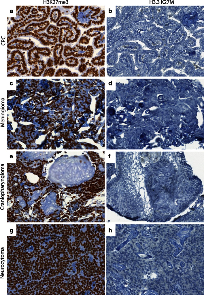 Comparison of H3K27me3 and H3.3 K27M in pediatric brain tumors. a , b Representative images of H3K27me3 (40×, a ) and H3.3 K27M (40×, b ) in choroid plexus papilloma (CPC). c , d Representative images of H3K27me3 (40×, c ) and H3.3 K27M (40×, d ) in meningioma. e , f Representative images of H3K27me3 (40×, e ) and H3.3 K27M (40×, f ) in craniopharyngioma. g , h Representative images of H3K27me3 (40×, g ) and H3.3 K27M (40×, h ) in neurocytoma