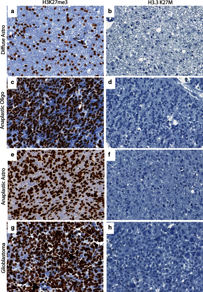 Comparison of H3K27me3 and H3.3 K27M in adult brain tumors. a , b Representative images of H3K27me3 (40×, a ) and H3.3 K27M (40×, b ) in diffuse astrocytoma. c , d Representative images of H3K27me3 (40×, c ) and H3.3 K27M (40×, d ) in anaplastic oligodendroglioma e and f. Representative images of H3K27me3 (40×, e ) and H3.3 K27M (40×, f ) in anaplastic astrocytoma. g , h Representative images of H3K27me3 (40×, g ) and H3.3 K27M (40×, h ) in adult GBM