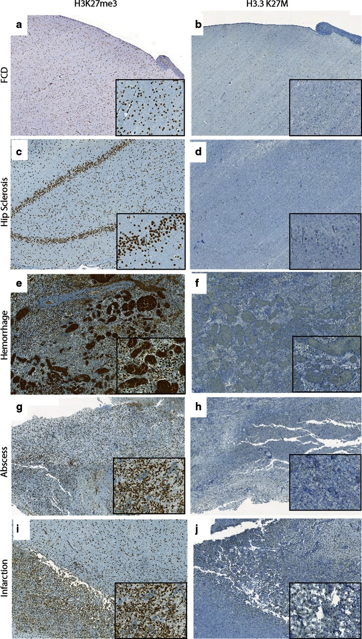 Comparison of H3K27me3 and H3.3 K27M in non-neoplastic brain tissues. a , b Representative images of H3K27me3 (5×, a , inset 40×) and H3.3 K27M (5×, b , inset 40×) in focal cortical dysplasia (FCD). c , d Representative images of H3K27me3 (10×, c , inset 40×) and H3.3 K27M (10×, d , inset 40×) in hippocampal (Hip) sclerosis. e , f Representative images of H3K27me3 (5×, e , inset 40×) and H3.3 K27M (5×, f , inset 40×) in hemorrhage. g , h Representative images of H3K27me3 (5×, g , inset 40×) and H3.3 K27M (5×, h , inset 40×) in abscess, inset shows abscess wall. i , j Representative images of H3K27me3 (5×, i , inset 40×) and H3.3 K27M (5×, j , inset 40×) in infarction, inset shows macrophages