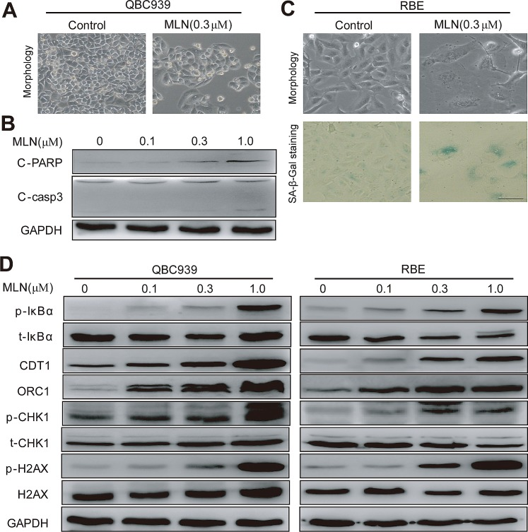 MLN4924 induced apoptosis or senescence in a cell line-dependent manner (A and B) MLN4924 induced apoptosis in QBC939 cells and expression of pro-apoptotic proteins in MLN4924-treated QBC939 cells. Cells were treated with MLN4924 for 72 hours and then subjected to morphological observation, or immunoblotting analysis for proteins involved in apoptotic induction, using GAPDH as a loading control. (C) MLN4924 induced senescence in RBE cells. After 72-hour MLN4924 treatment, cells were subjected to morphological observation and staining of senescence-associated <t>β–galactosidase.</t> Scale bar, 100μm. (D) MLN4924 induced the accumulation of CRL substrates. Cells were treated with MLN4924 for 72 hours using indicated concentrations and subjected to immunoblotting analysis with GADPH as a loading control.