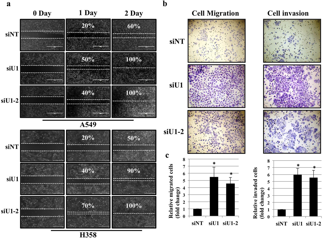 """UBQLN1 loss induces cell migration and invasion (a) Migration assay in A549 and H358 cells. Cells were transfected with either non targeting (siNT) siRNA or two different siRNAs targeting UBQLN1 (siU1 and siU1-2). 24 hrs post siRNA transfections a pipette tip was used to scratch the dish to make a """"wound"""". Cells were examined after wound has been formed and successively for 24hr and 48hr post wound formation and photographed. (b) Invasion assay in A549 cells. Cells were transfected with either non targeting (siNT) siRNA or two different siRNAs targeting UBQLN1 (siU1 and siU1-2). 24 hours after siRNA transfection cells were seeded into Boyden chambers without (left) or with (right) matrigel. The lower chamber contained media with serum, whereas the upper chamber containing the cells was without serum. 48 hrs later cells on the underside of the membrane were fixed and stained. (c) Quantification of relative number of cells migrated or invaded through matrigel (*P"""