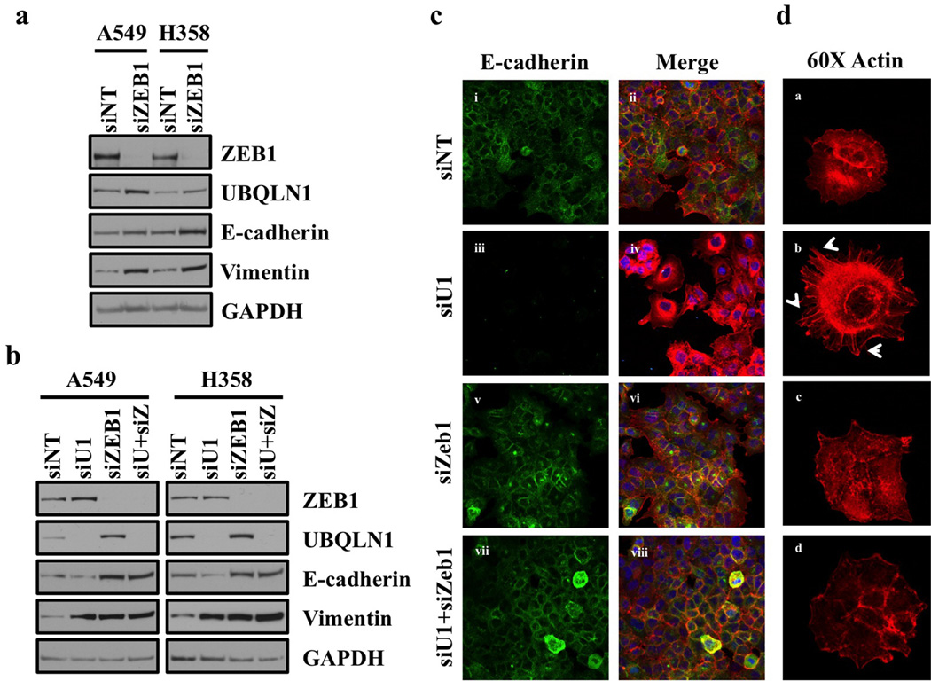 Coordinate regulation of EMT by UBQLN1 and ZEB1 (a) Loss of Zeb1 increases expression of UBQLN1 and increases epithelial markers in A549 and H358 cells. Western blot analysis of ZEB1, UBQLN1 and EMT markers in A549 and H358 cells. Cells were transfected with either non-targeting siRNA (siNT) or with siRNA targeting ZEB1 (siZEB1). After 72 hrs of transfection, cells were harvested and subjected to western blot for protein expression analysis for UBQLN1, ZEB1 along with other EMT markers (b) UBQLN1 loss requires ZEB1 to induce EMT in A549 and H358 cells. Cells were transfected with non-targeting siRNA, with siUBQLN1, siZEB1 or the combination of siUBQLN1 and siZEB1. After 72 hrs of transfection, cells were harvested. Western blot analysis confirming knockdown of UBQLN1 and ZEB1 along with different EMT markers. (c) Fluorescence staining for E-cadherin in A549. After 24 hrs of transfection either with non-targeting siRNA (siNT) or with siRNAs targeting UBQLN1 (siU1), siZeb1 or combination of siU1 and siZeb1, cells were trypsinized and plated on chamber slides and stained for E-cadherin. i, iii, v and vii: E-cadherin was detected using Alexa Fluor 488 goat anti-rabbit IgG (green). ii, iv, vi and viii: overlay of respective E-cadherin and F-actin (Alexa Fluor 568 Phalloidin; red) staining with DAPI counter stain. (d) A549 cells were prepared as described in (c) and F-actin was detected with Alexa Fluor 568 Phalloidin (red) with 60x objective. Re-organization of actin cytoskeleton through destruction and cellular protrusion formation is indicated by arrows.