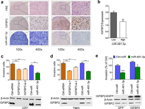 miR-491-3p inhibits glioma cell invasion (a, b) Expression of miR-491-3p inversely correlates with IGFBP2 protein level. Transcript stability in each sample was verified by using U6 as an internal control. Representative images of in situ hybridization staining for miR-491-3p and immunohistochemical staining for IGFBP2 are shown in (a). Data in panel b is presented as mean ± SEM (***, P =0.0002, Mann Whitney test). (c, d) miR-491-3p inhibits invasion of U251 (c) and T98G (d) cells. Invading cells were counted in ten randomly chosen fields under the microscope (n = 3). (e) IGFBP2 partly overcomes the inhibitory effect of miR-491-3p on cell invasion in U251 cells. Levels of exogenous (IGFBP2-EGFP) and endogenous IGFBP2 were determined by Western blot (lower panel). Beta-actin was used as a protein loading control. GFP or IGFBP2 represent U251 cells stably expressing either GFP or IGFBP2-EGFP, respectively. Cell invasion was calculated as the number of invasive cells divided by the number of invasive U251-GFP cells that were transfected with control mimics (upper panel) (n = 3). In c, d and e, data are presented as mean ± SD (*, P