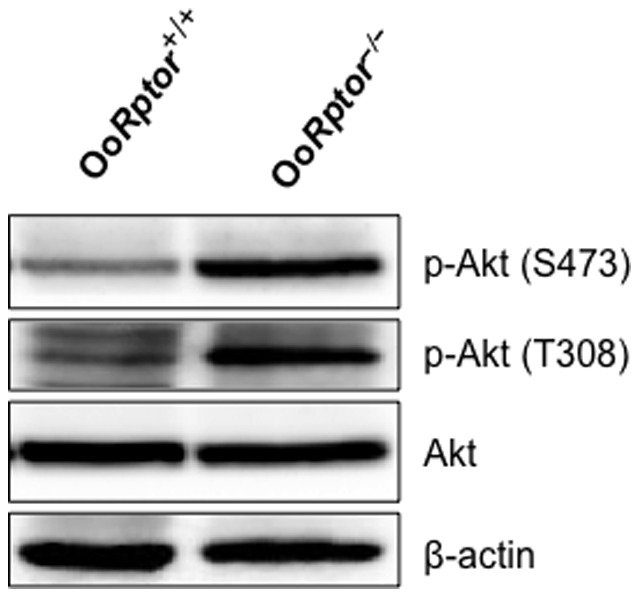 PI3K–Akt signaling in Oo Rptor −/− and Oo Rptor +/+ oocytes. Oocytes were isolated from the ovaries of Oo Rptor −/− and Oo Rptor +/+ mice at PD12–14, and western blots were performed as described in the Materials and Methods . Levels of phosphorylation of Akt at S473 and T308 are elevated in Oo Rptor −/− oocytes compared to Oo Rptor +/+ oocytes, and this indicates that PI3K–Akt signaling in Oo Rptor −/− oocytes is enhanced. Levels of total Akt and β-actin were used as internal controls.
