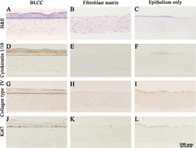 Histological and immunohistochemical staining shows differences between BLCC, Fibroblast matrix, and Epithelium only constructs. Hematoxylin and <t>eosin</t> (H E) (A–C); Cytokeratin 1/10 (D–F); Collagen type IV (G–I); and Ki67 (J–L) show functional and morphological differences between constructs. Differentiated keratinocytes were only identified in the BLCC (D–F). Collagen type IV, indicating basement membrane deposition, and Ki67 immunostaining for proliferating cells were found at the interface of the dermal and epidermal layers in the BLCC, but not in Fibroblast matrix or Epithelium only constructs (G–I, J–L). Dotted lines in (A), (D), (G), and (J) demarcate the dermal–epidermal interface in the BLCC. Day 20 results shown. Each image is representative of n = 3 samples per group. BLCC, bilayered living cellular construct.
