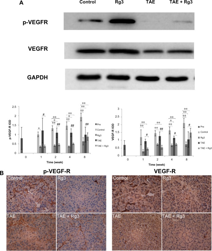 Ginsenoside Rg3 reduced hepatoma VEGF-R2 expression and phosphorylation after TAE in an orthotopic transplantation HCC rat model. Notes: ( A ) VEGF-R2 expression and phosphorylation were determined by Western blot. Protein expression was normalized to GAPDH. The data represent the mean ± SD of three independent experiments. * P