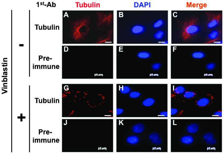 Paracrystal formation in human A549 cells. A549 cells were treated with a vinblastine solution and fixed. The cells were stained with an anti-tubulin antibody followed by an appropriate secondary antibody. Nuclei were stained with DAPI. Images were acquired using an Axiovert 200M microscope. Bar = 10 μm.